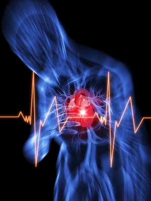 Rebound hyperthermia linked to worse neurologic outcomes, mortality in survivors of cardiac arrest